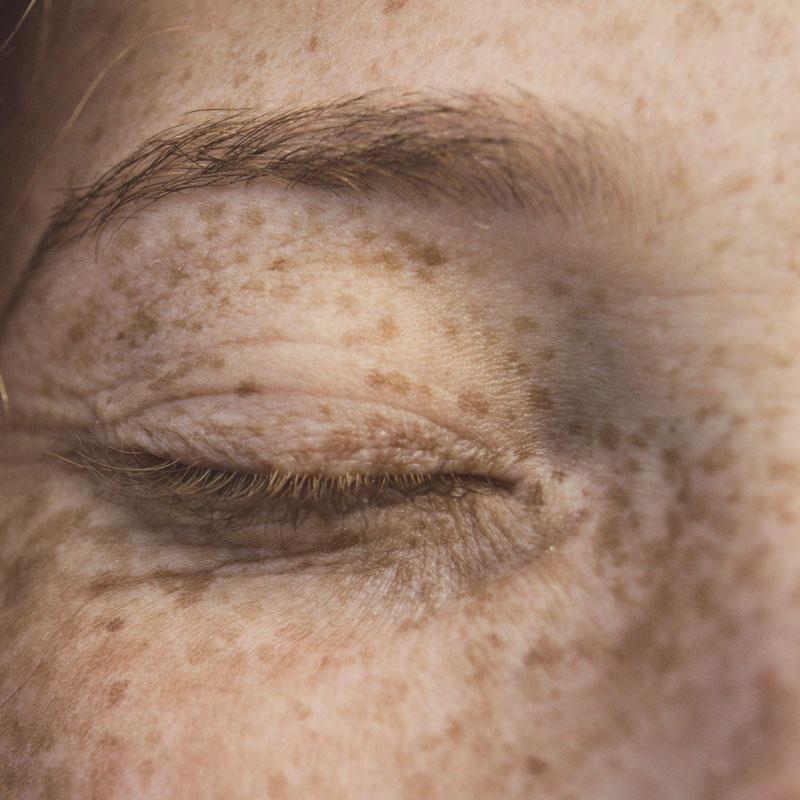 Einfluss Kollagen auf Hautalterung